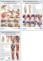 Taping NeuroMuscolare - David Blow - Set completo di 3 poster